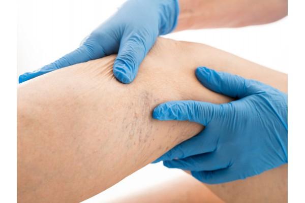 Angiologista: quando você deve procurar esse especialista?